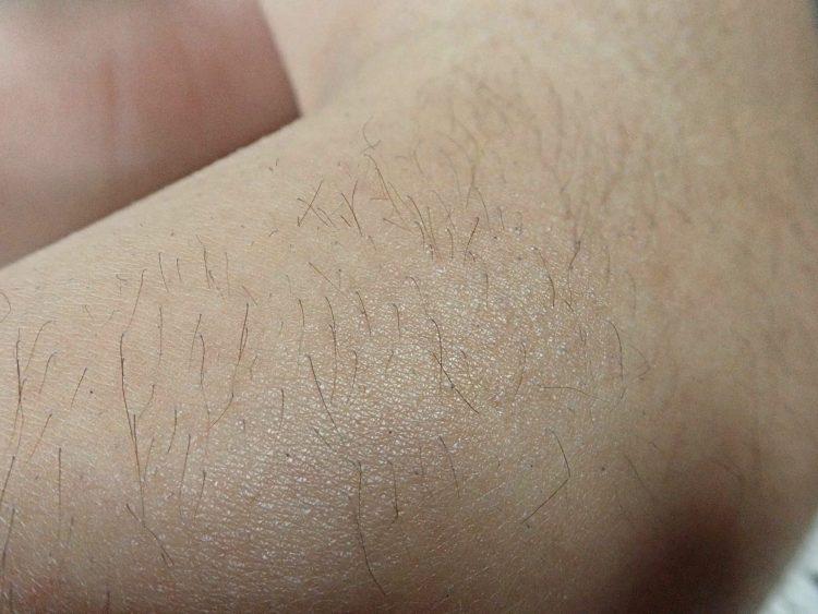 肘の辺りの毛のアップ