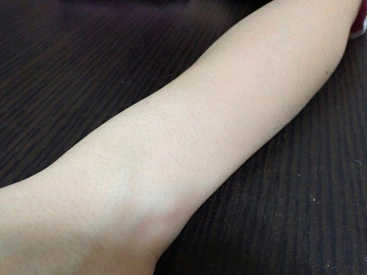 除毛クリーム処理後10日目の腕